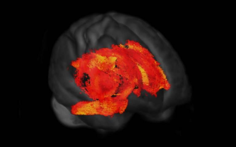 Brain wiring changes in Parkinson's