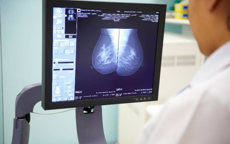 International trial included 2,298 women aged 45 or over with breast cancer