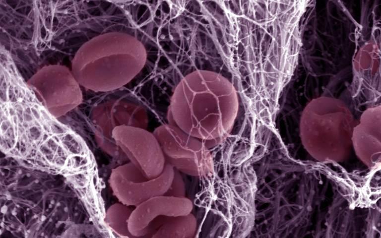 components of a blood clot