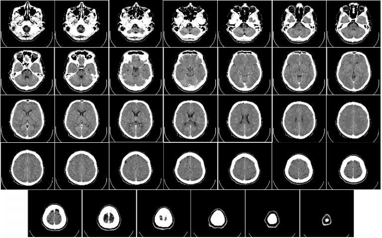 Computer tomography of human brain