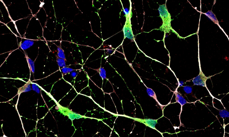 A control medium spiny neuron culture fixed at day 36 and stained with DARPP32 (green), CTIP2 (red), β3Tubulin (white) and DAPI (blue).