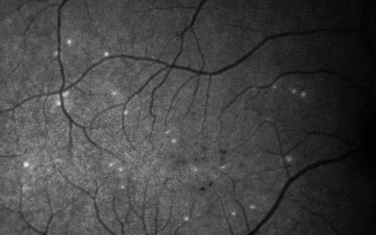 DARC glaucoma test