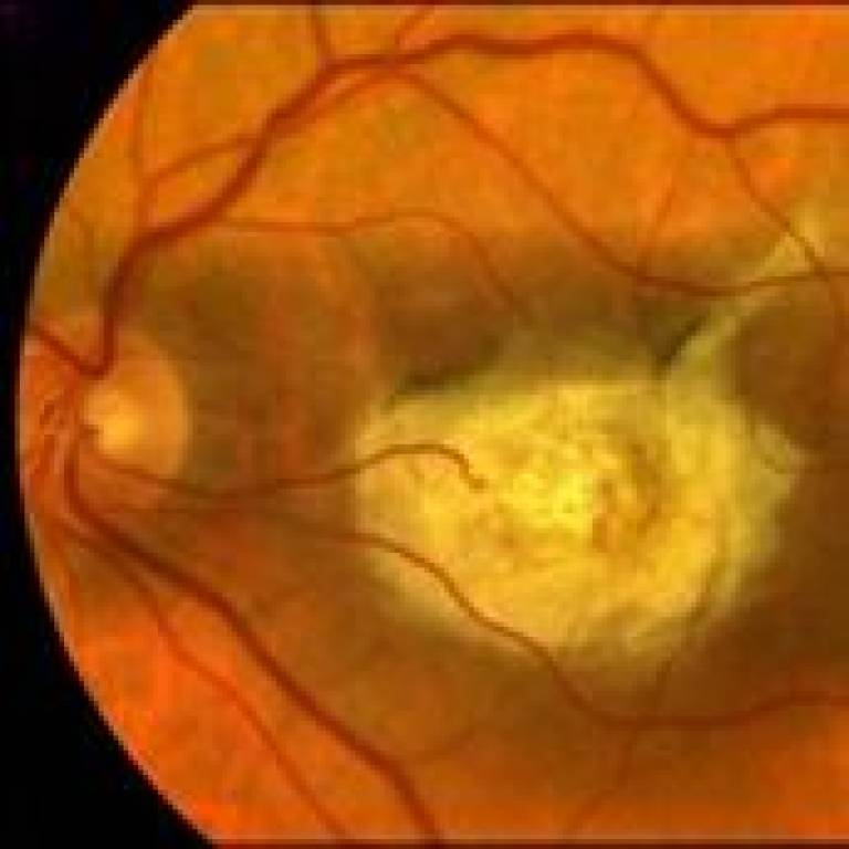 An eye affected by Age-Related Macular Degeneration