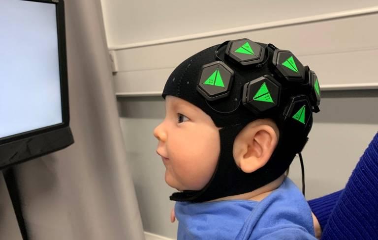 Baby wearing the imaging cap