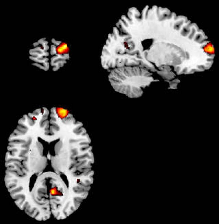 Views of inflated cortical surface showing areas of brain gray matter correlating with introspective accuracy.