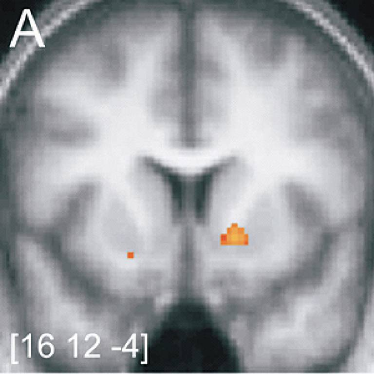 Funtional magnetic resonance image of ventral striatum activity