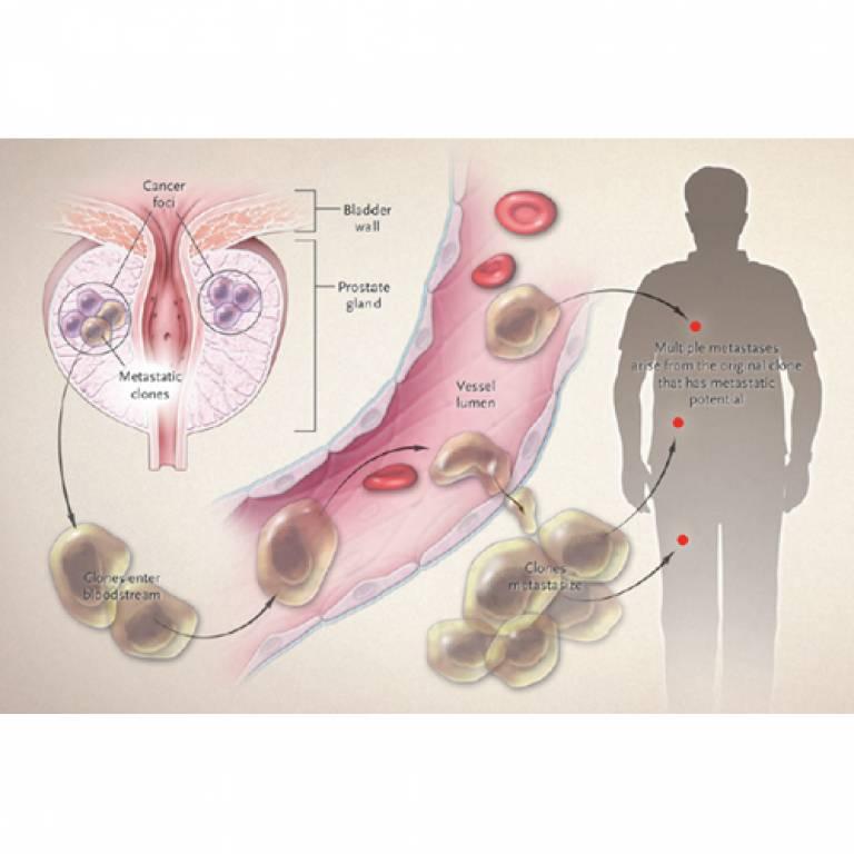 Origin of prostate cancer metastases