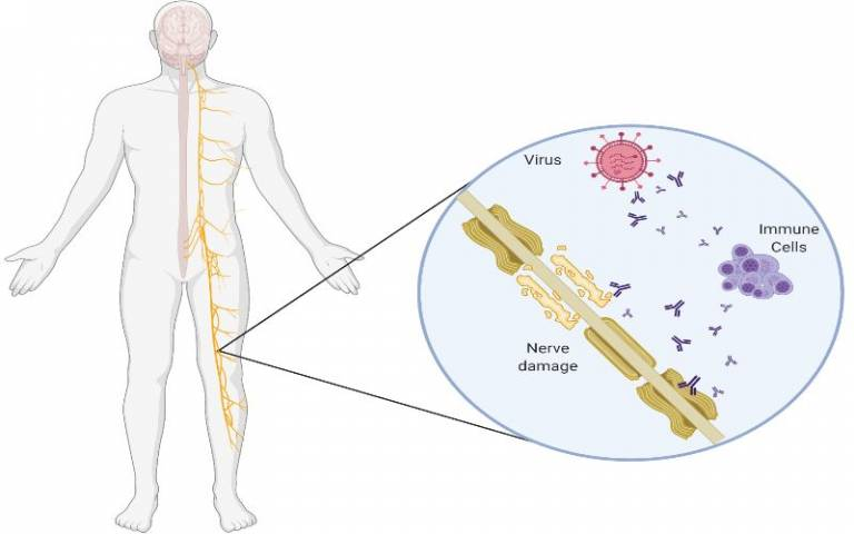 GBS is a rare but serious autoimmune condition that attacks the peripheral nervous system