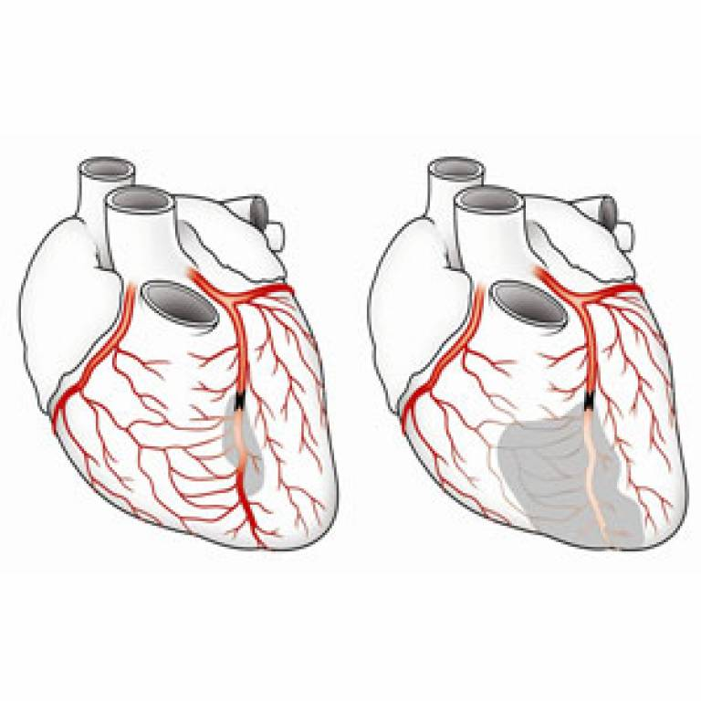 Illustration of coronary collaterals