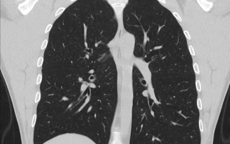 CT scan of healthy lung