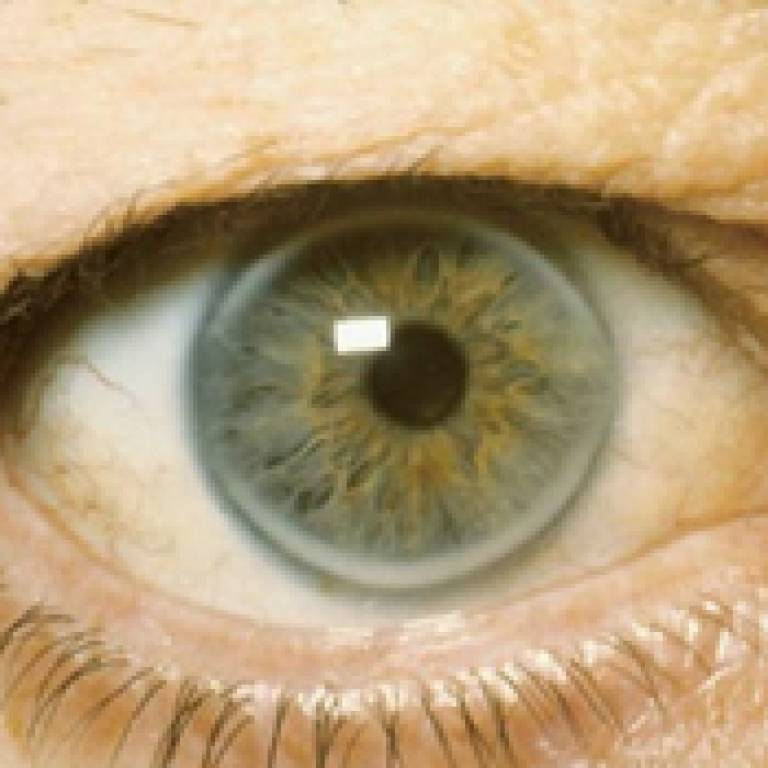 corneal arcus