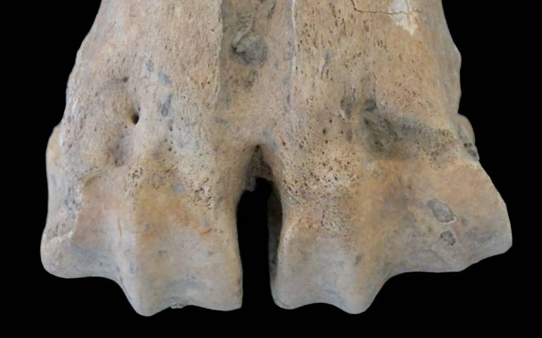 Medial (the side closest to the centre of the body) enlargement of the articular surface of a metatarsal (this bone was directly dated to c.5950 cal BC).