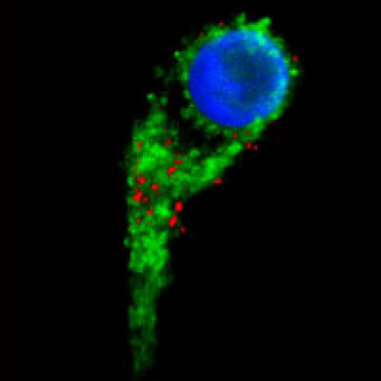 A human cell (green cytoplasm, blue nucleus) loaded with mini-magnets
