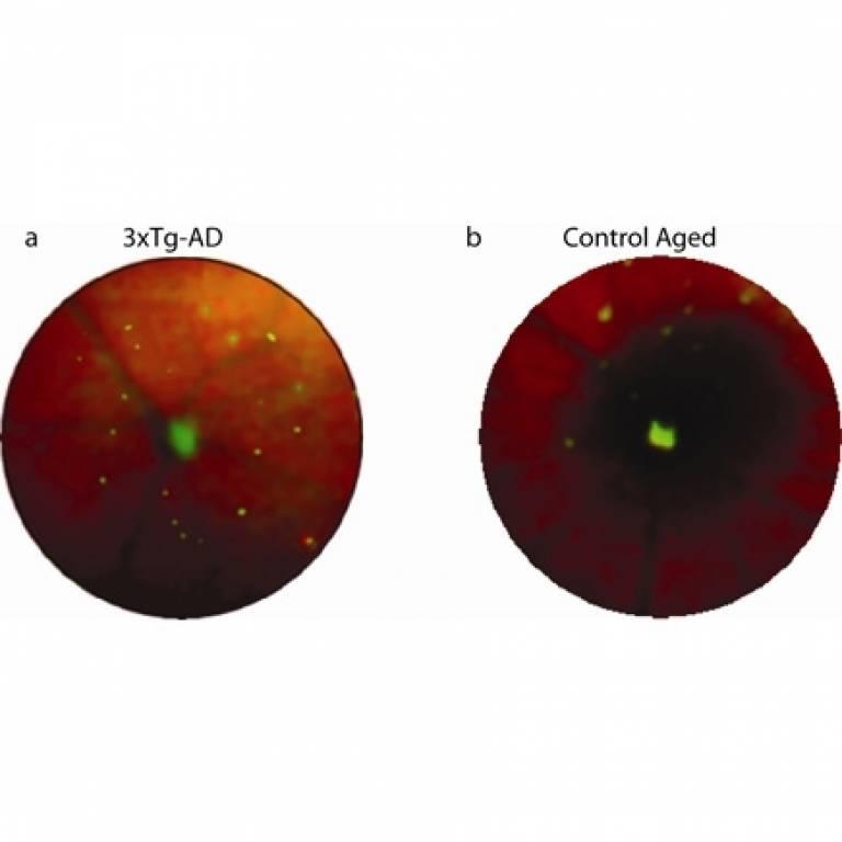 Images of retina