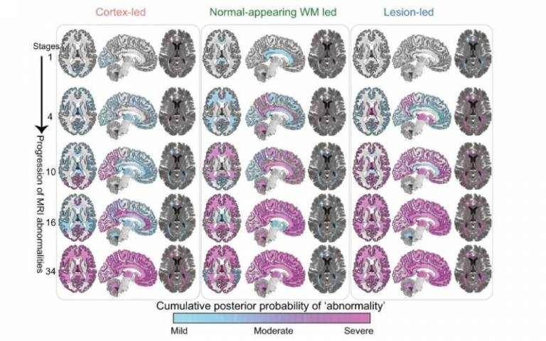 New MS subtypes defined as 'cortex-led', 'normal-appearing white matter-led', and 'lesion-led