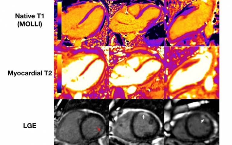 MRI highlighting myocardial injury in COVID-19 patient