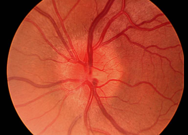 Optical neuritis