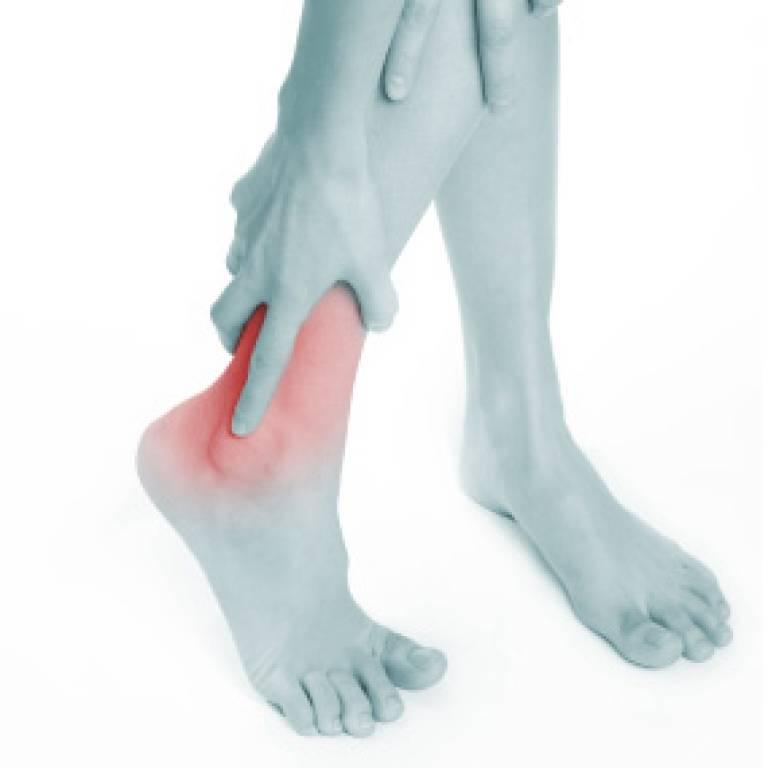 Achilles heel pain