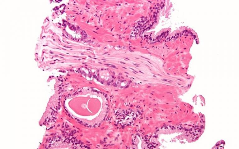 UCL researchers have invented a new test to identify the earliest genetic changes of prostate cancer in blood