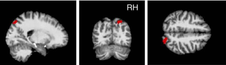rPPC grey matter volume accounts for risk tolerance after controlling for age.