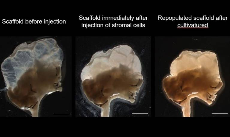 Stages of thymus scaffold: Human stromal cell repopulation