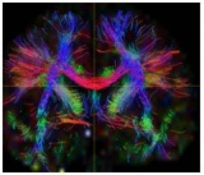 Brain white matter connections