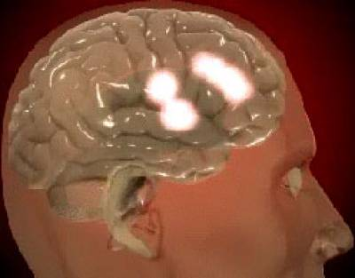 The areas of the brain which light up when in love