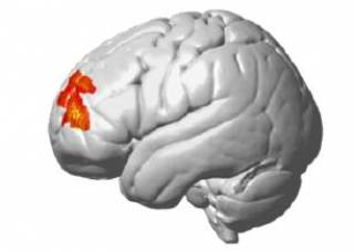 brain with left frontopolar region highlighted