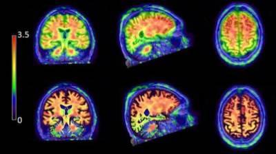 Alzheimer patient imaged with Flutemetamol (GE).