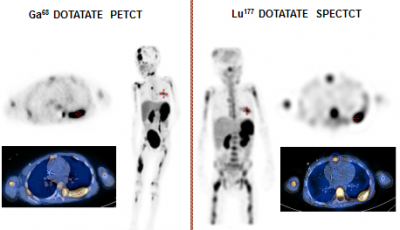 Molecular Radiotherapy Dotatate