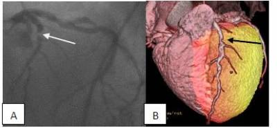 82-Rb cardiac hybrid PET CT imaging