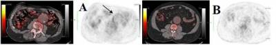 Fused FDG PET/CT and black and white PET images