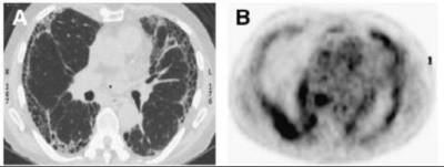 Idiopathic pulmonary fibrosis is a fibrotic lung disease