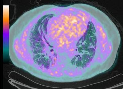 PET image fused to CT, from a patients with idiopathic pulmonary fibrosis using FMISO a hypoxia tracer