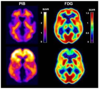 Alzheimer's disease PET images