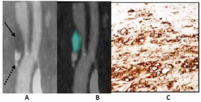 Carotid PET/CT Images from a 76 year old man with a recent TIA.