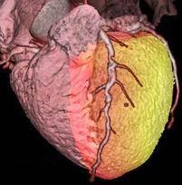 Fused cardiac PET/CT
