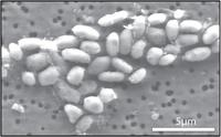 Image of GFAJ-1 grown on arsenic.  Image Credit: Jodi Switzer Blum