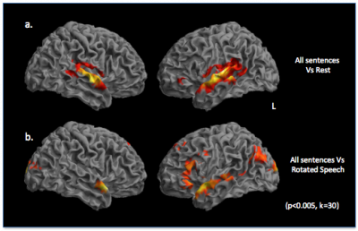 brain image for linguistics resesarch