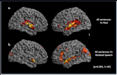 brain image for linguistics resesarch