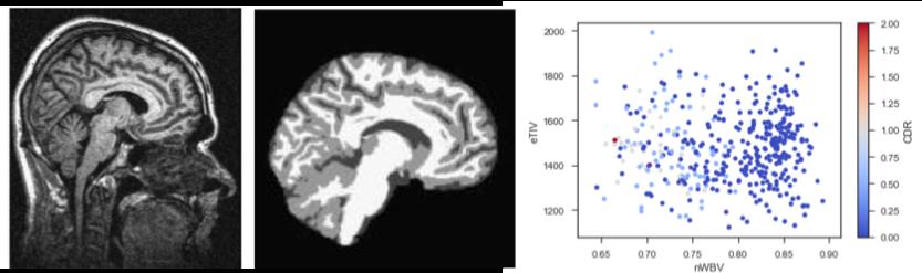 Quantum Algorithms for Cognitive Healthcare | UCL Quantum Science