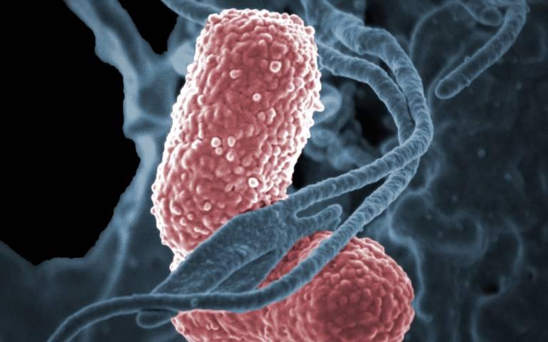 klebsiella_pneumoniae_bacteria_13743456084_cropped.jpg