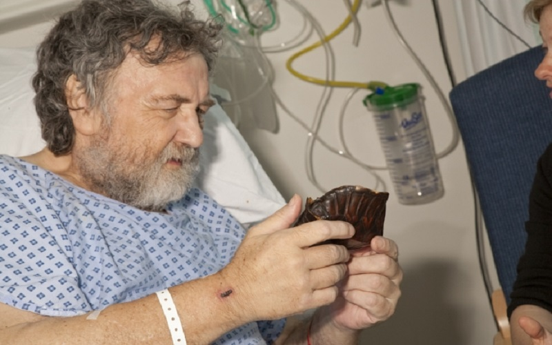 Male patient at University College Hospital holding a museum artefact