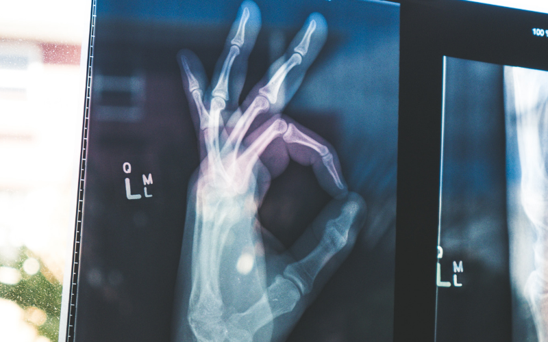 X-ray of a person's hand making the 'OK' sign