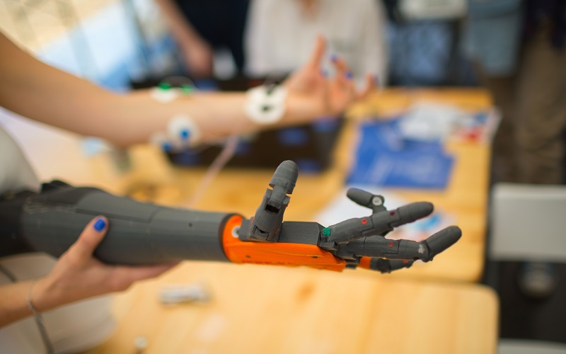 Bionic Arm being tested as prosthetic