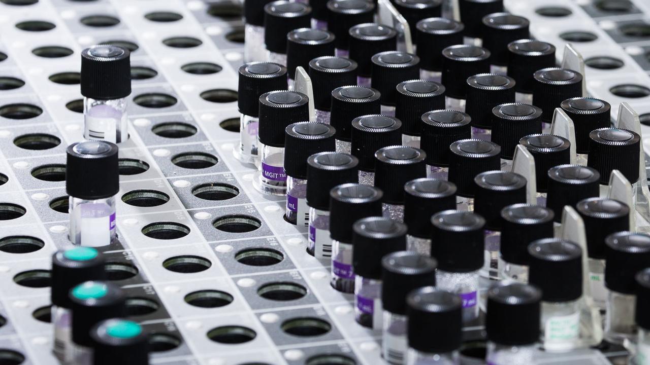 MGIT tubes for testing M.tuberculosis antibiotic resistance