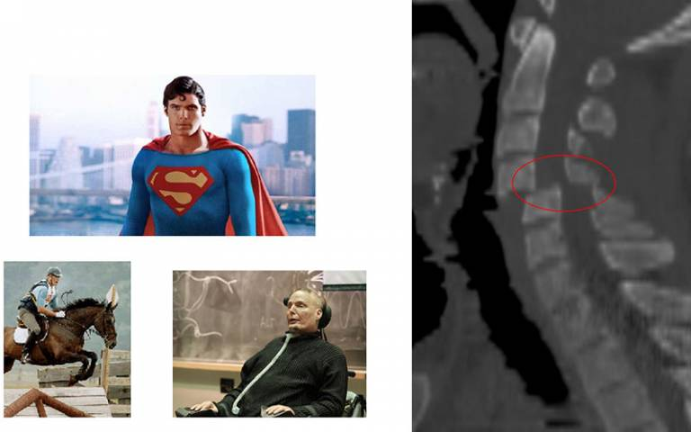 Neck fracture xray alongside pictures of superman