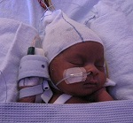 Image of premature baby