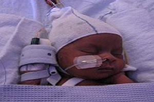 Neonatal sensory processing
