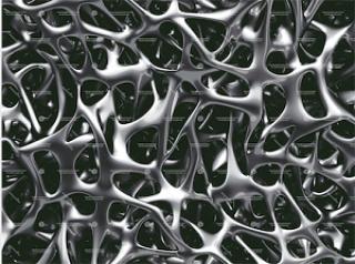 Image of brittle bone disease
